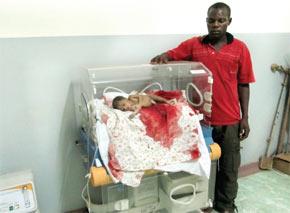 Shocking!! : Ne... Baby Oxygen